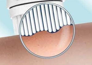 Gesichtsreinigungsbürste Test - Porentiefe Reinigung